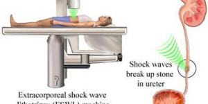 Extracorporeal-shock-wave-lithotripsy